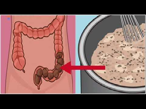 Schistosomiasis canada