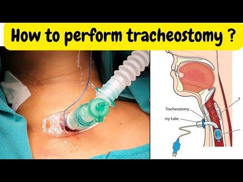 Technika wykonania tracheostomii