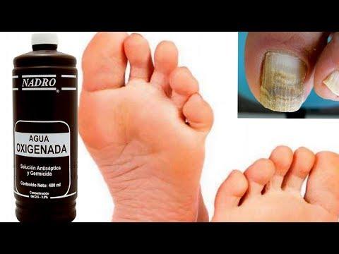 El ungüento para el tratamiento del hongo de las manos