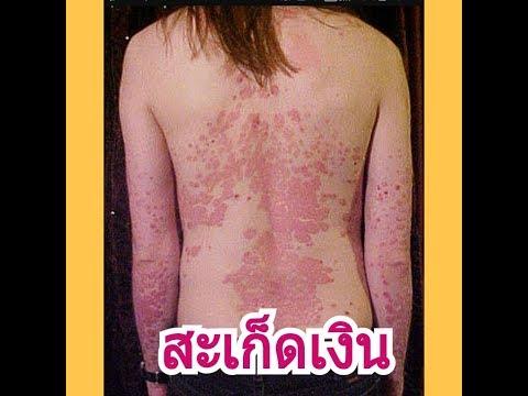 โรคสะเก็ดเงินน้ำผึ้ง celandine