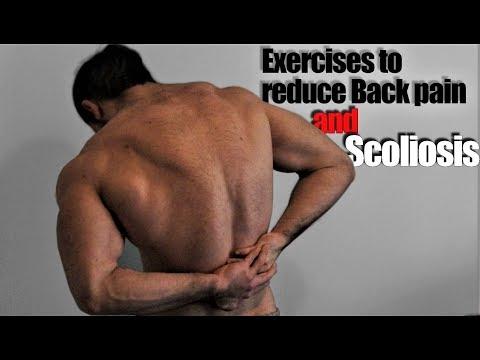 Si alleni per conservarsi indietro scoliosis