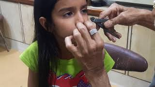 Nose Piercing Of 7 Yrs Old Girl