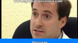 Tratamiento de las Verrugas - IVADE - Agrupación Clínica