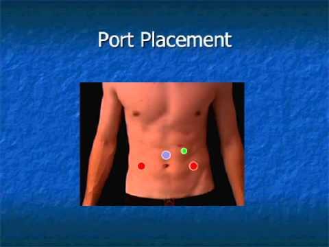 Behandlung von lokal fortgeschrittenem Prostata