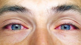 How to get rid of red eyes after consuming cannabis