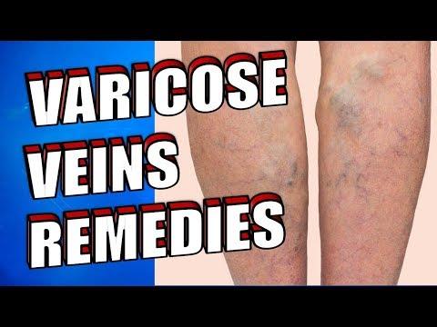 Tratamentul piciorului varicoză în penza