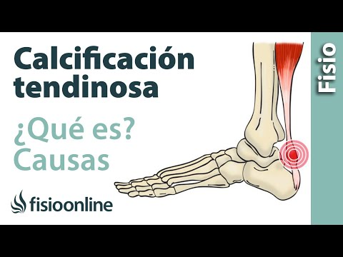 Calcificación tendinosa - Qué es y cuáles son sus causas