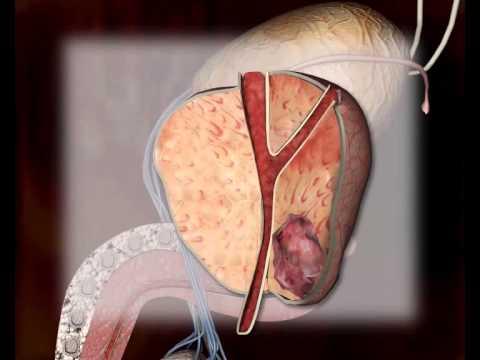 Prostaty stimulace ejakulace