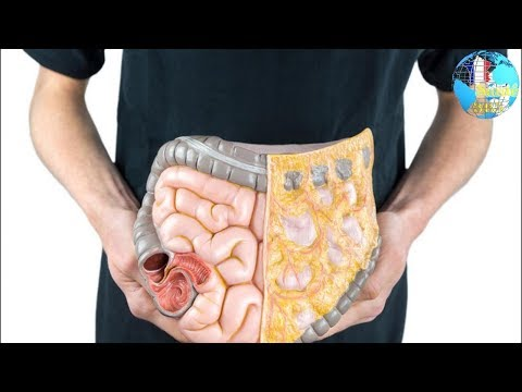 Dysbiosis yeast infection
