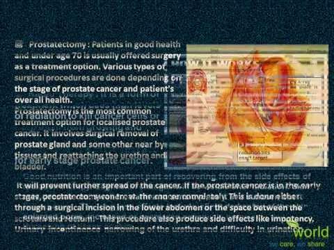 Traitement de la prostatite Clinic 1