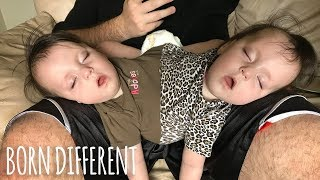 Conjoined Twins Are A Medical Miracle   BORN DIFFERENT