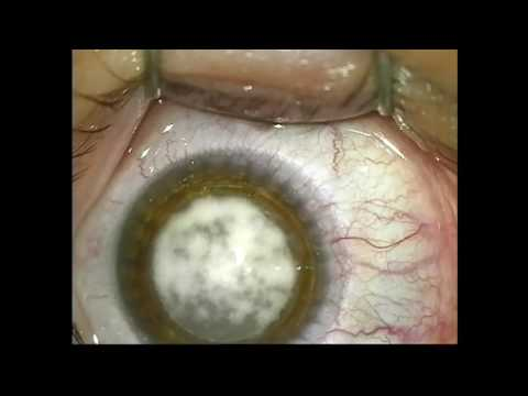 Что означает разное зрение в глазах