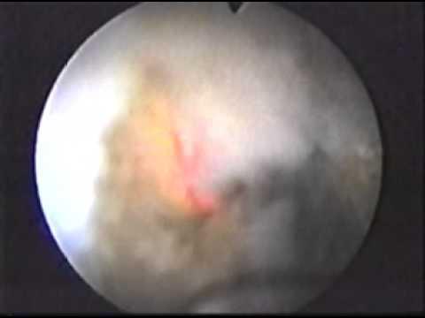 Импульсно-волновая терапия простатита