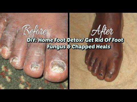Processing sapatos na may fungus toenails
