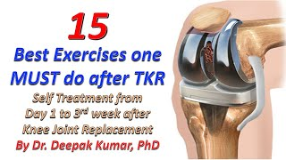 15 Best Self Treatment Exercises after Total Knee Replacement Surgery | TKR | Physiotherapy at Home