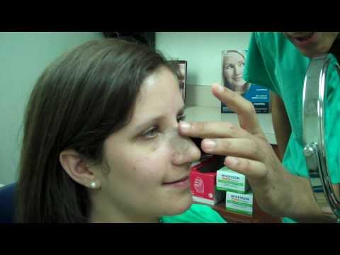 Dr. Epstein – Rhinoplasty Procedure 6 days Post Op