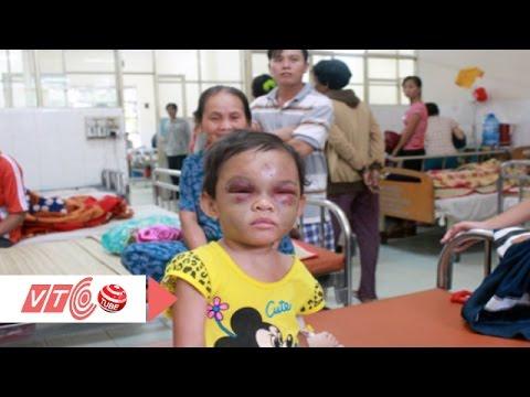 Xót lòng bé 4 tuổi bị bạo hành