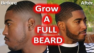 How To Grow a Thicker Full Beard - No Patches Fast!