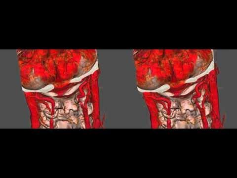 Stark tut das Unterteil des Bauches links und die Lende weh