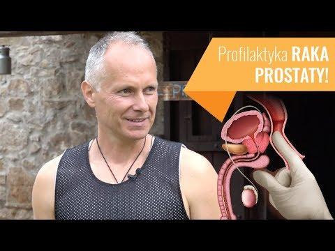 Prostata sclerosi ICD 10