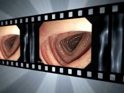Ultratone para el tratamiento de adenoma de próstata