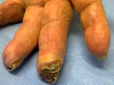 Crema su funghi di unghie