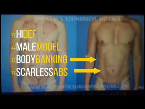 High Definition Ab Sculpting Without Incisions and Body Banking by Dr. Douglas Steinbech