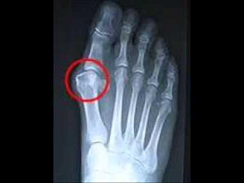 ระหว่างนิ้วเท้าที่ถูกกระแทก