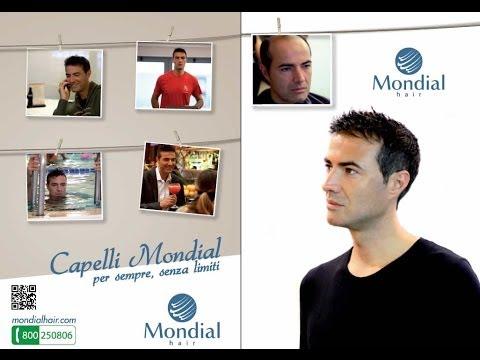 Mondial Hair: L'innovazione rivoluzionaria infoltimento capelli