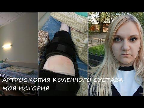Артроскопия/ Меня узнали в операционной))/ Реабилитация