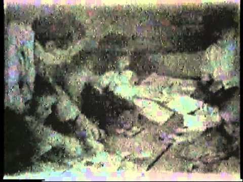 Les taches de pigment autour de lorifice anal