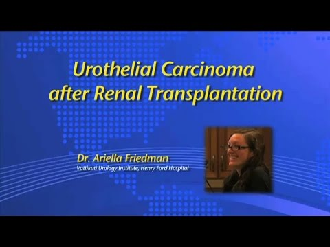 Urothelial Carcinoma after Renal Transplantation