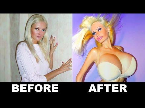 Suso plastic surgery Mariupol
