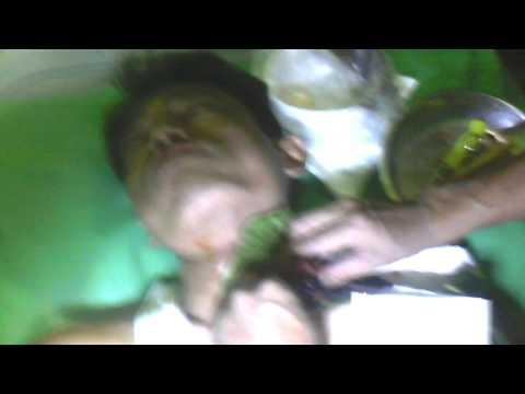 Video Video Operasi Kelenjar Tiroid by Ki Mijil Pamungkas