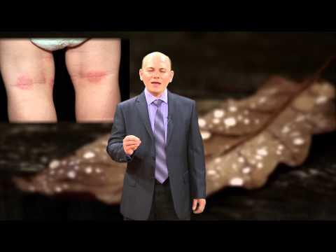 El eléboro la psoriasis el tratamiento
