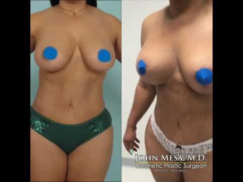 Breast implants sa Minsk