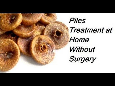 Video Piles Treatment at Home without Surgery - Bawaseer ka ilaj