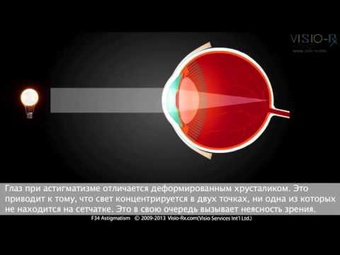 Коррекция зрения одесса