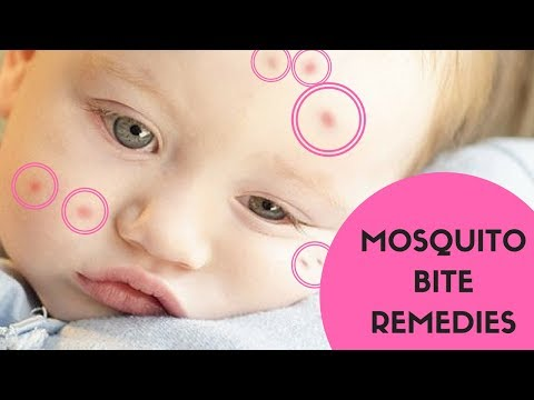 Video How to Treat Insect Bites - Mosquitoes and Bug Bites Treatment to Soothe Itching and Pain