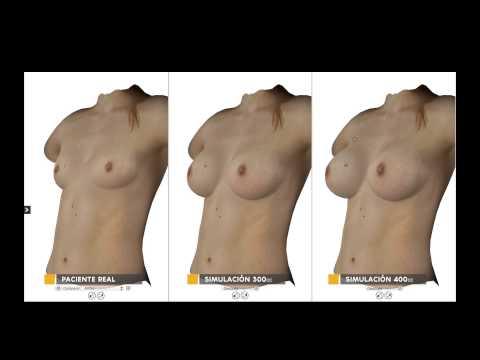Que es más pequeña dimensión de pecho implanta