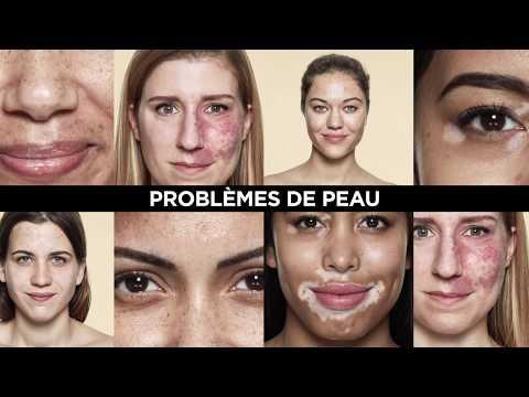 Quelle vitamine contre le vieillissement de la peau de la personne