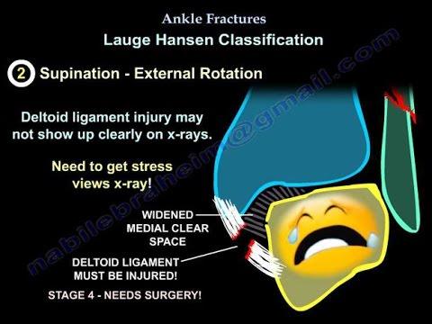 Wie mit Arthrose der Kniegelenke leben