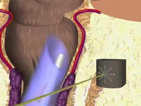 Prostatitis bolesti bolest v podbřišku