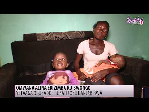 Omwana alina ekizimba ku bwongo, yetaaga obukadde 3 okujjanjabibwa