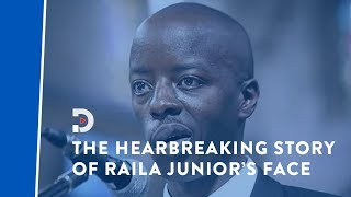 Raila Odinga Junior opens up about his Medical condition