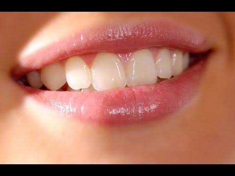 Luar Biasa Inilah Cara Memutihkan Gigi Kuning Dengan Cepat Secara