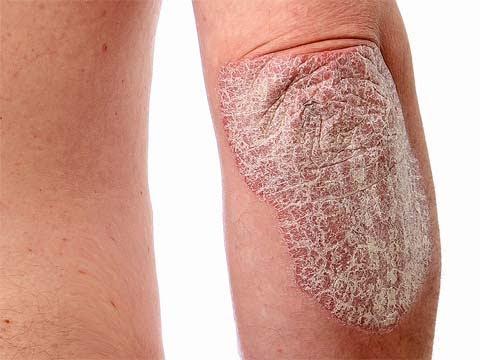 Cura di eczema secco su mani di unguento