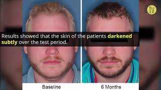 New therapy increases melanin in patients with albinism