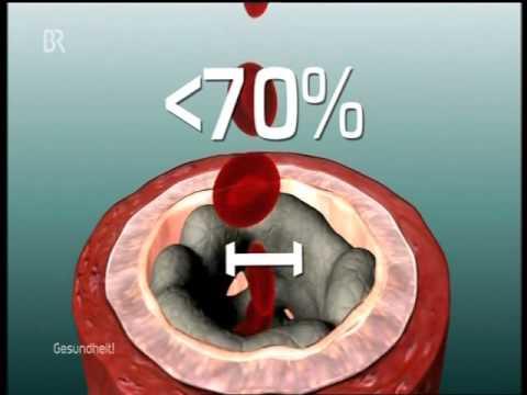 Die Thrombose auf dem Hintergrund der Atherosklerose