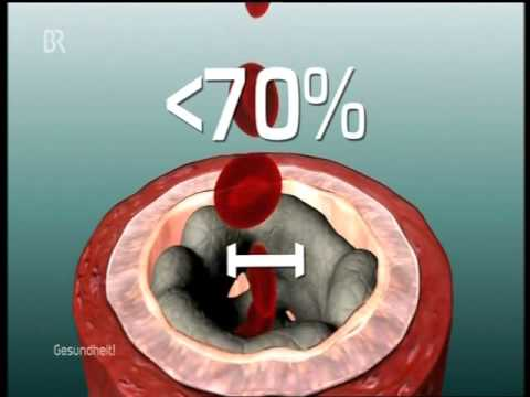 Wieviel kostet die Operation bei warikose iwanowo